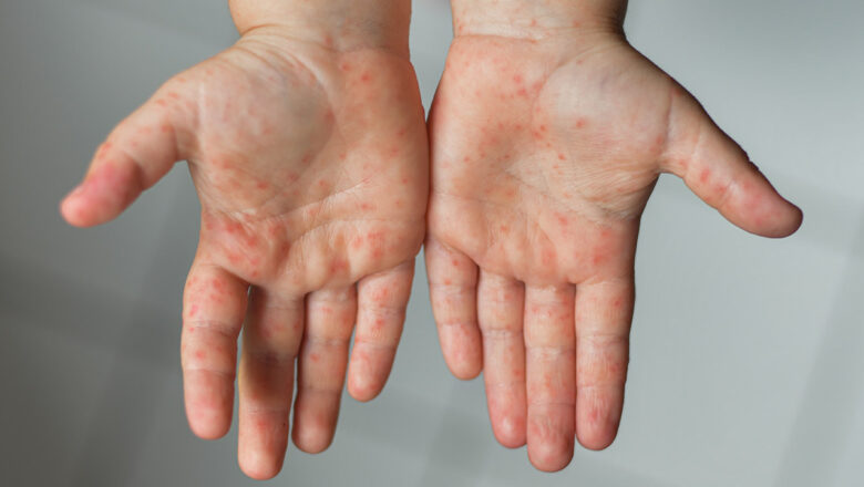 Kids hand, foot and mouth diseases and remedies