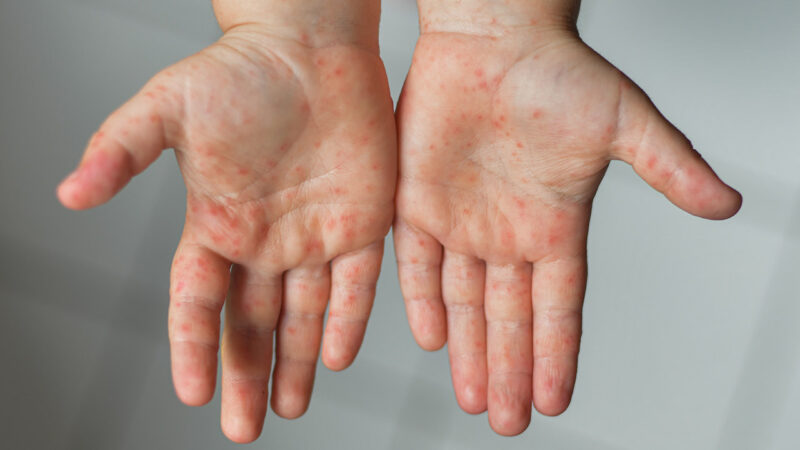 hand, foot and mouth diseases